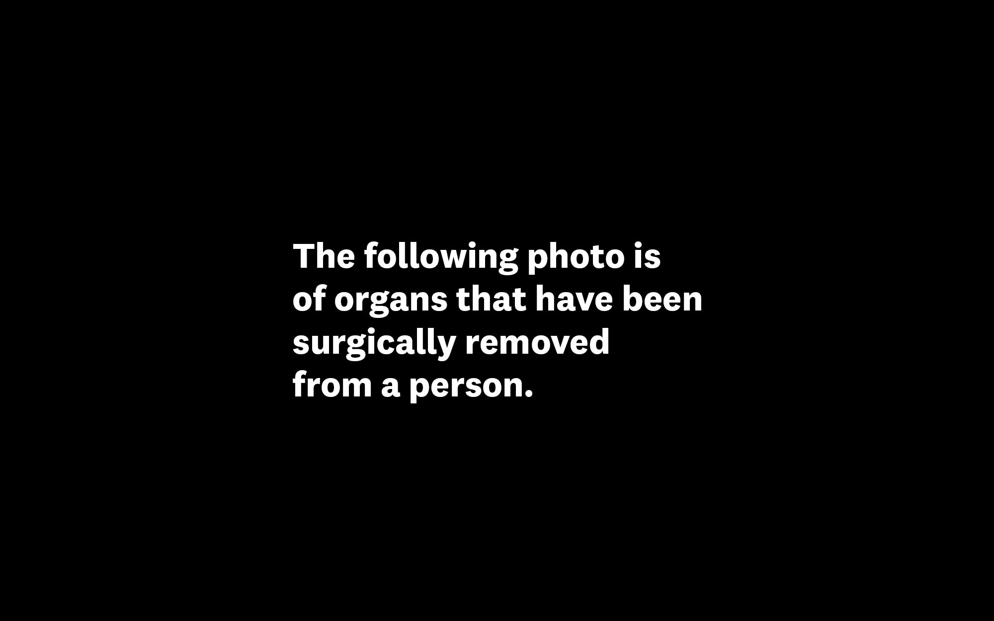 The following photo is of organs that have been surgically removed from a person.